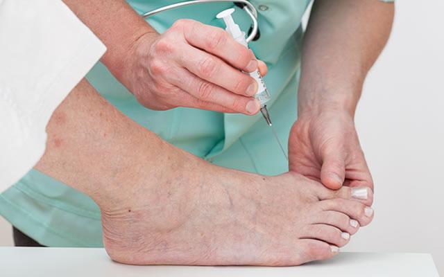 外反母趾の治療|横浜市日吉の「ひよし鍼灸院センター接骨院」